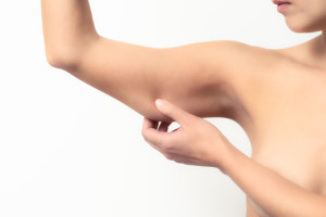 Woman With Flabby Arms